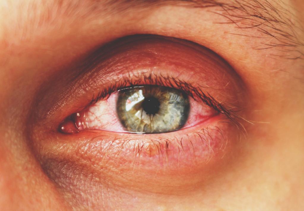 dolor de ojos causas