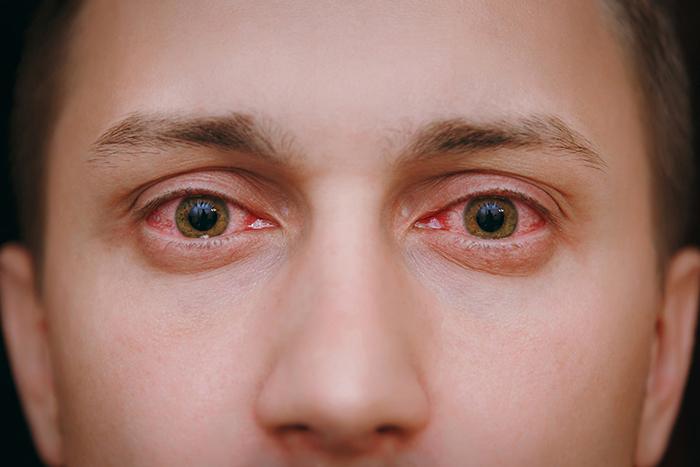 dolor de ojos