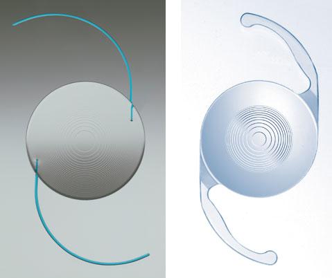 implante de lentes intraoculares