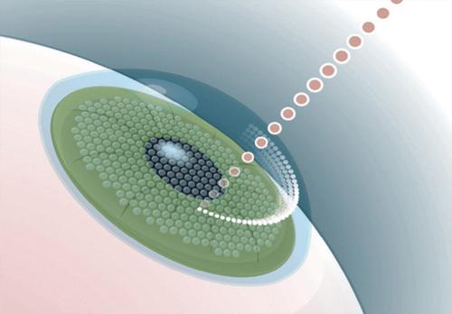 operación láser para miopía